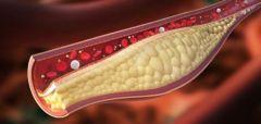 """محذرة من """"الصامت القاتل"""".. """"فهد الطبية"""" تقدم نصائح للوقاية من ارتفاع الكوليسترول"""