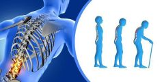 مرض هشاشة العظام.. ما أعراضه وطرق الوقاية منه؟