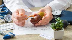 طبيب روسي يكشف عن أطعمة تتسبب في تكوّن حصى الكلى